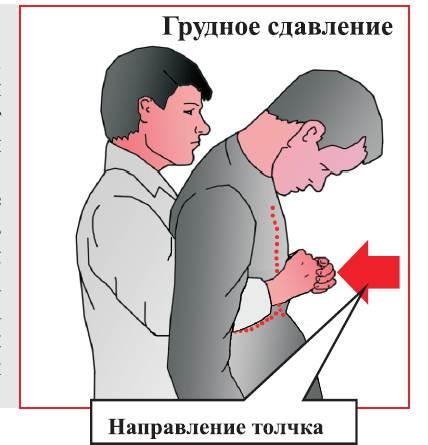 Механическая асфиксия4