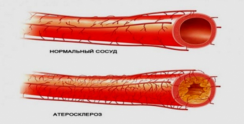 холестерин сосуды